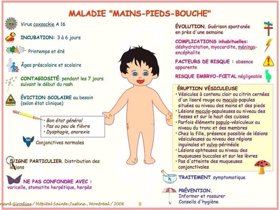 MALADIE MAINS-PIEDS-BOUCHE